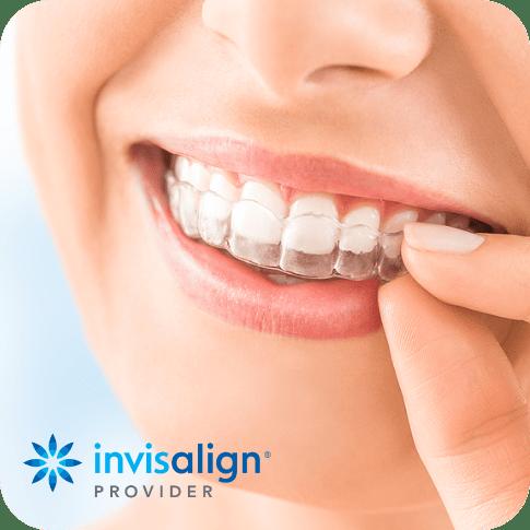 Effective Orthodontic Treatment | Braces