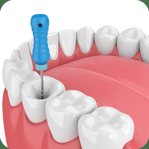 Endodontics | Save Your Tooth