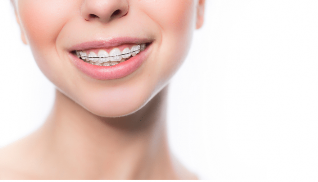 Damon Braces: Get Straight Teeth Without Traditional Brackets!