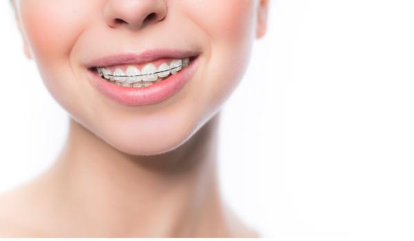 Pendakap Damon: Meluruskan gigi anda dengan sistem ligasi diri pasif!