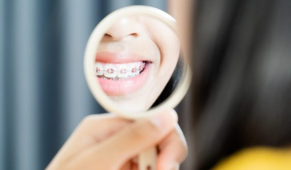 Can you have a beautiful smile without removing some of your teeth?