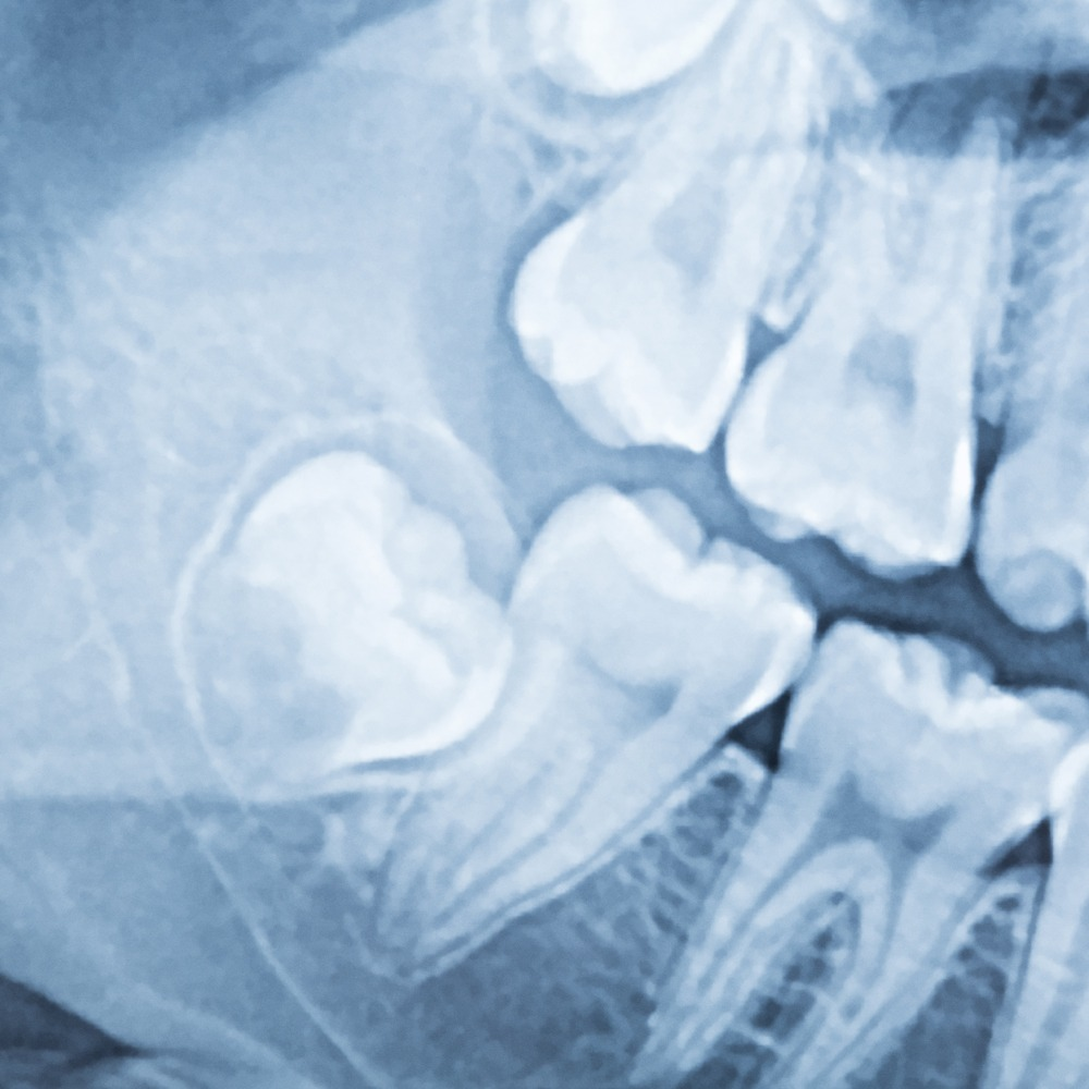 painless wisdom tooth extraction
